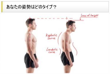 あなたの姿勢はどのタイプ?