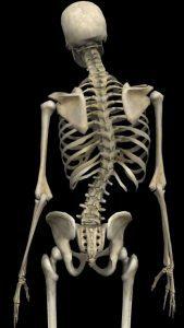 脊椎側弯症