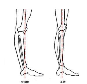 反張膝(はんちょうひざ)