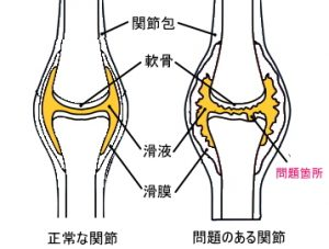 正常な関節と問題のある関節