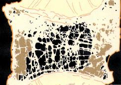 骨粗鬆症の骨断面図